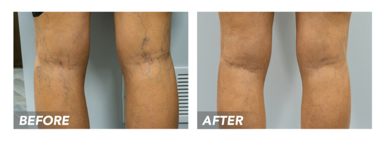 Are you looking for the best vein treatment in Paramus? This article highlights how vein doctors choose the best vein treatments for your specific needs.