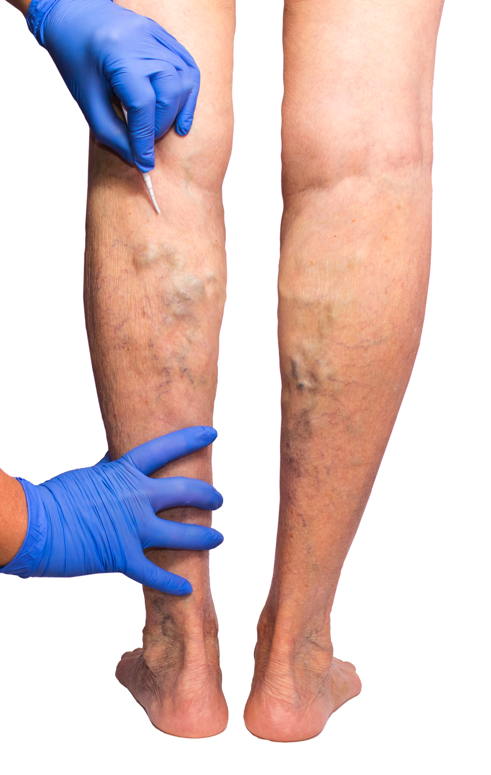 Dr. Todd Kobrinski is the best vein doctor in Newark, NJ, specializing in the latest minimally invasive treatments. In this article, our vein center discusses varicose veins and spider veins.