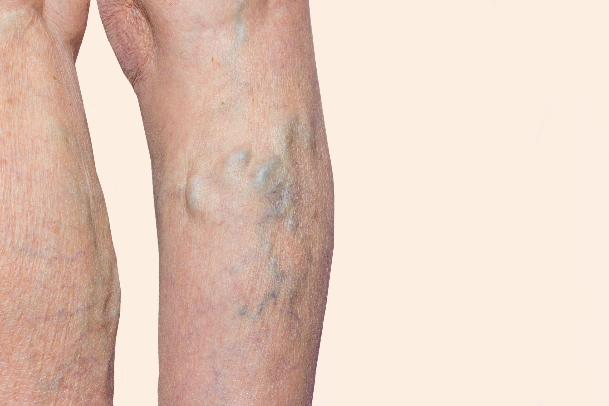 """Are you wondering, """"should I consult a vein doctor near me in Point Pleasant, NJ?"""" This article takes you through all the reasons to consult board-certified vein doctors."""