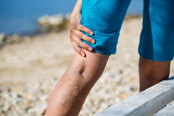 Vein Treatment Clinic provides highly curated minimally invasive varicose vein treatments. This article describes the anatomy of the ideal varicose vein treatment near Newark.